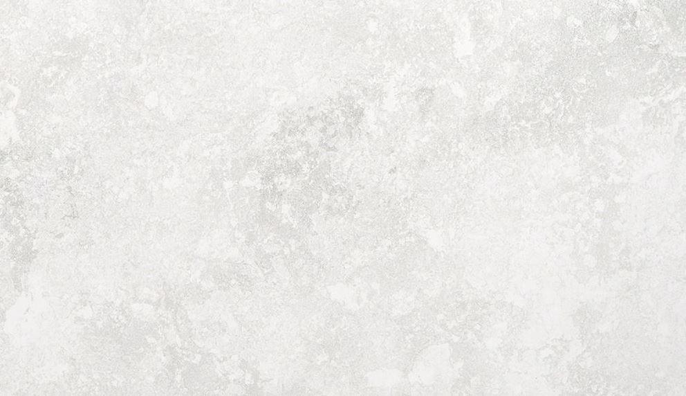 Silver Lake - Treppenanlagen zum Pauschalpreis 1